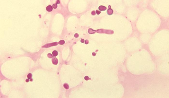 otitis por malassezia
