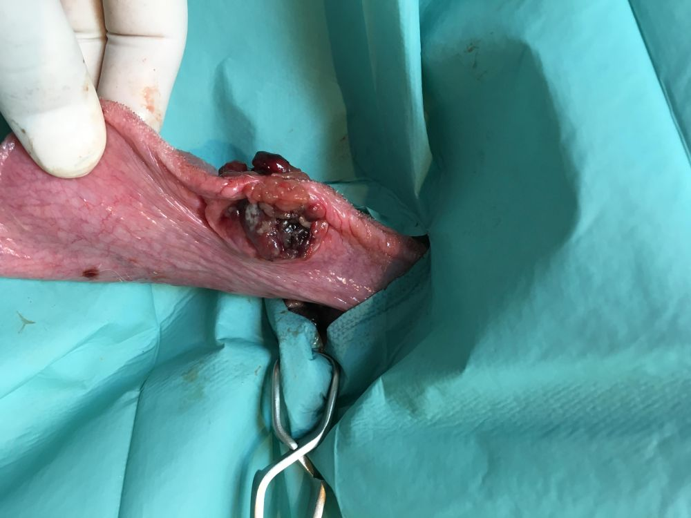 sarcoma oral