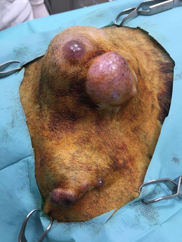 hemangiopericitoma