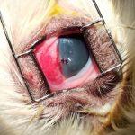 perforacion corneal