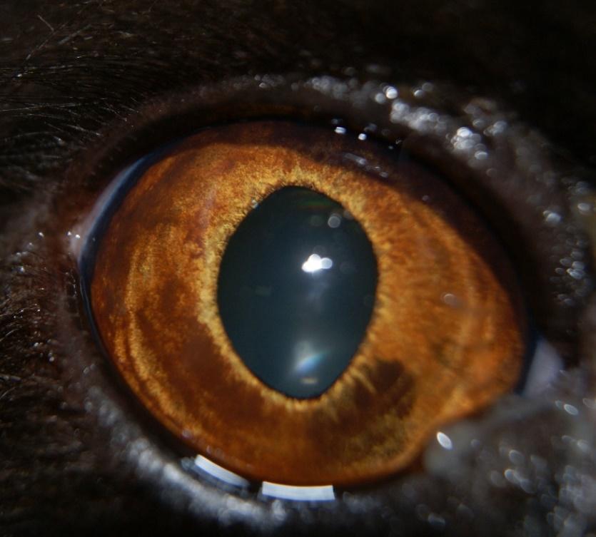 hiperpigmentacion benigna de iris 2