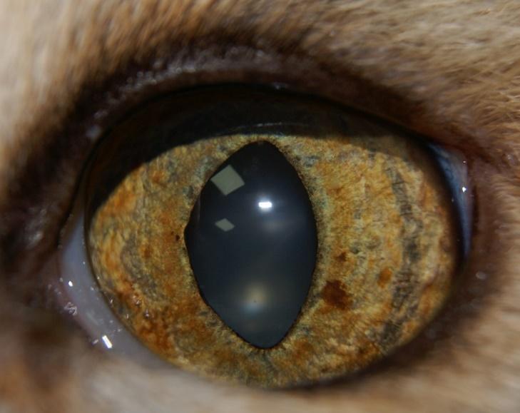 hiperpigmentacion benigna de iris