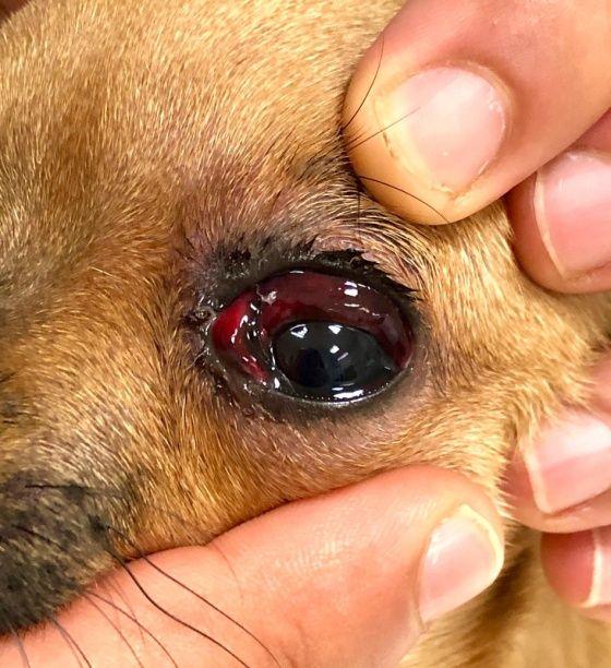 traumatismo del globo ocular